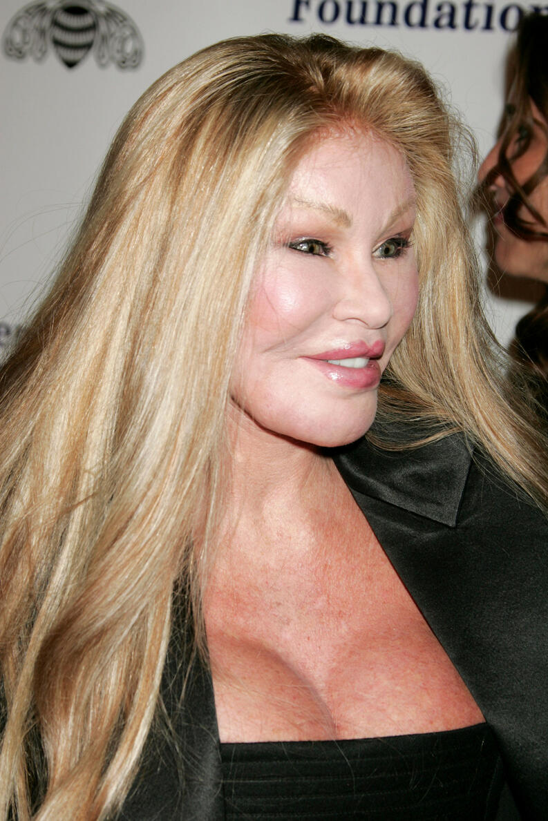 20 impactantes fotos de Jocelyn Wildenstein 15
