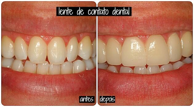 lente decontato dental 1