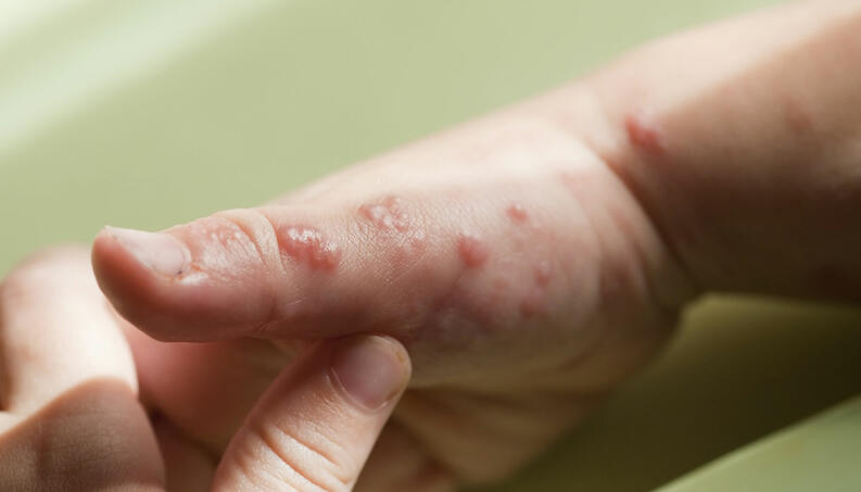 herpes zoster maos 1217 1400x800